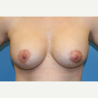 43 year old woman treated with Breast Augmentation after 3486673