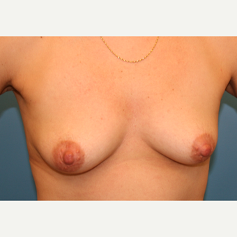 43 year old woman treated with Breast Augmentation before 3486673