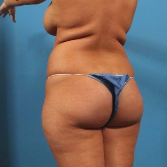 25-34 year old woman treated with Butt Augmentation 1679313