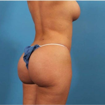 25-34 year old woman treated with Butt Augmentation after 1679313