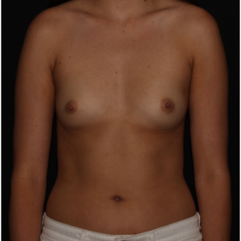 28 year old woman treated with Breast Augmentation before 3000536