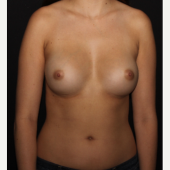 28 year old woman treated with Breast Augmentation after 3000536
