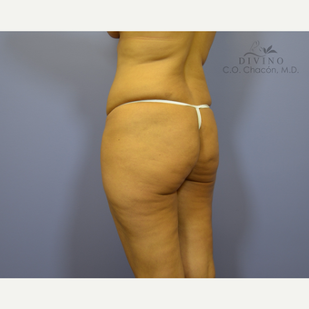 35-44 year old woman treated with Brazilian Butt Lift before 3386378