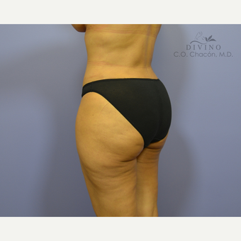 35-44 year old woman treated with Brazilian Butt Lift after 3386378
