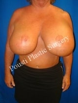 2 Stage Breast Procedure, Breast Implant Removal, Breast Lift, Revision Breast Surgery before 1517980