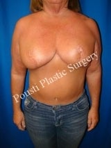 2 Stage Breast Procedure, Breast Implant Removal, Breast Lift, Revision Breast Surgery after 1517980