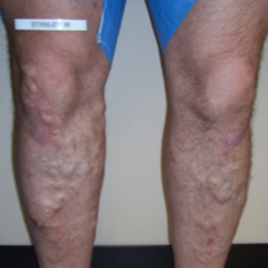 Bilateral VNUS Closures and subsequent Sclerotherapy (Injections) before 1576302