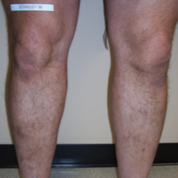 Bilateral VNUS Closures and subsequent Sclerotherapy (Injections) after 1576302