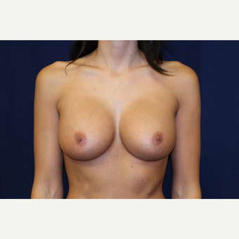 18-24 year old woman treated with Breast Augmentation after 3776961