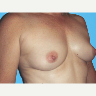 Breast Augmentation before 3732757