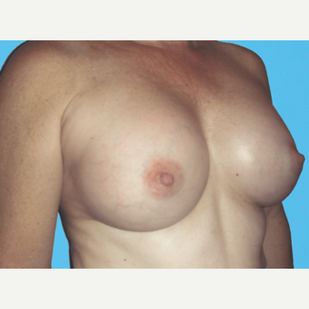 Breast Augmentation after 3732757