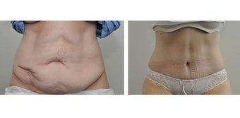 Before and after tummy tuck before 1210419