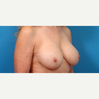 55-64 year old woman treated with Breast Implant Revision after 3340121