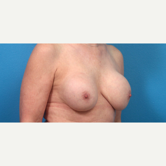 55-64 year old woman treated with Breast Implant Revision before 3340121