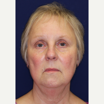 55-64 year old woman treated with Facelift before 3070821