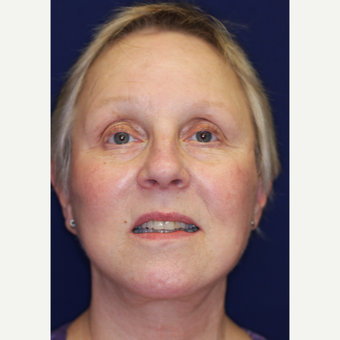 55-64 year old woman treated with Facelift after 3070821