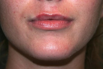 18-24 year old woman treated for Lip Augmentation before 1535436