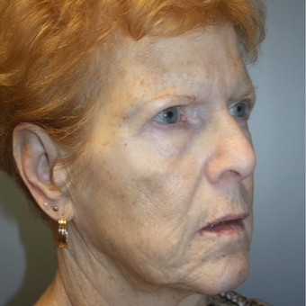 65-74 year old woman treated with Facelift before 3808371