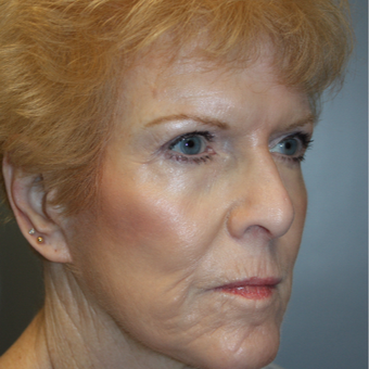 65-74 year old woman treated with Facelift after 3808371