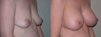 Breast Augmentation after 432822