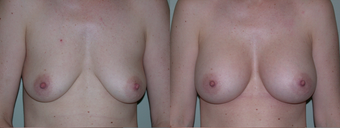Breast Augmentation before 432822