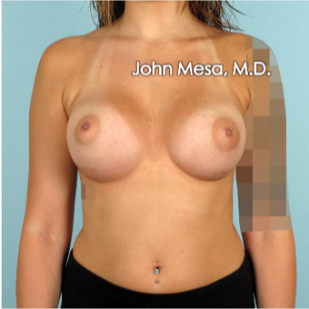 18-24 year old woman treated with Breast Augmentation after 3266880
