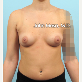 18-24 year old woman treated with Breast Augmentation before 3266880