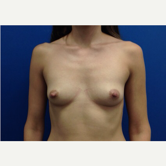 Breast Fat Transfer before 2791109