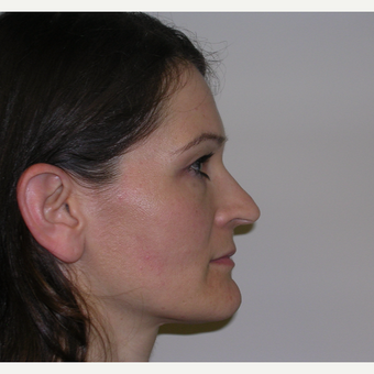 25-34 year old woman treated with Rhinoplasty before 3134571