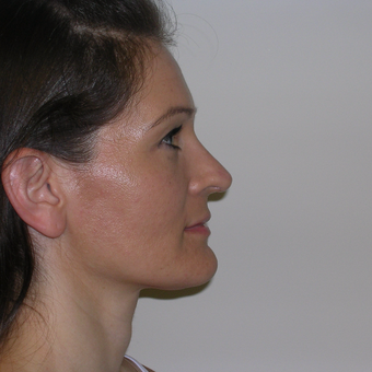25-34 year old woman treated with Rhinoplasty after 3134571