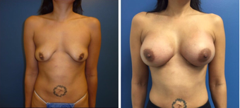 35-44 year old woman treated with Breast Augmentation before 3670800