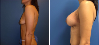 35-44 year old woman treated with Breast Augmentation after 3670800