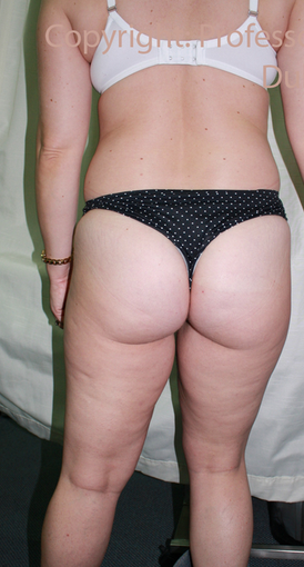 Liposuction before 1686704