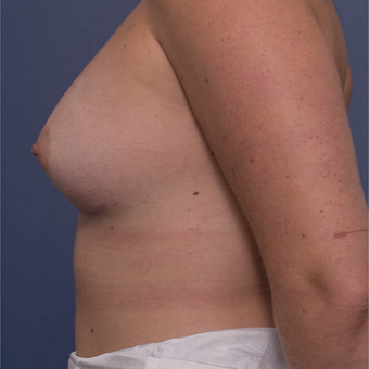 25-34 year old woman treated with Breast Augmentation after 3766832