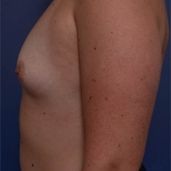 25-34 year old woman treated with Breast Augmentation before 3766832