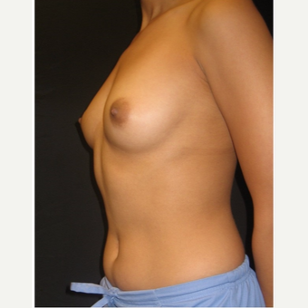 25-34 year old woman treated with Breast Augmentation before 3104028
