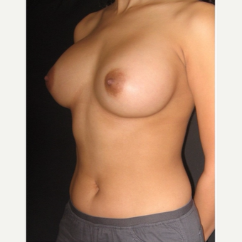 25-34 year old woman treated with Breast Augmentation after 3104028