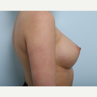 Breast Augmentation after 3340088