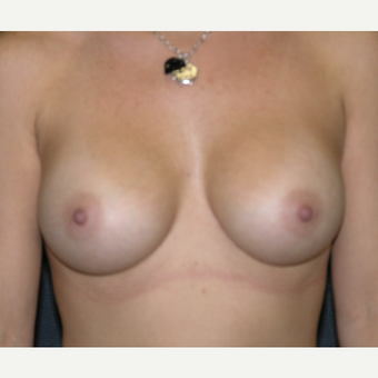 35-44 year old woman treated with Breast Augmentation after 3455613