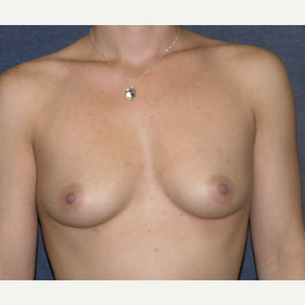35-44 year old woman treated with Breast Augmentation before 3455613