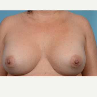 35-44 year old woman treated with Breast Augmentation after 3782128