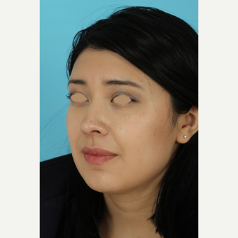 25-34 year old woman treated with Rhinoplasty after 3691273