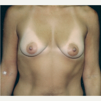 35-44 year old woman treated with Breast Augmentation before 3236202