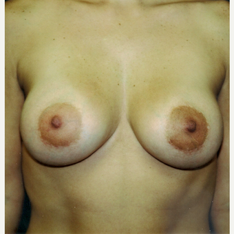 35-44 year old woman treated with Breast Augmentation after 3236202