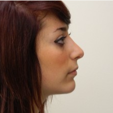 25-34 year old woman treated with Rhinoplasty after 3506038