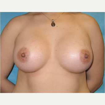 31 year old woman treated with Breast Augmentation after 3725791