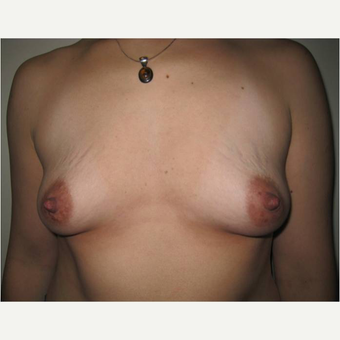 31 year old woman treated with Breast Augmentation before 3725791