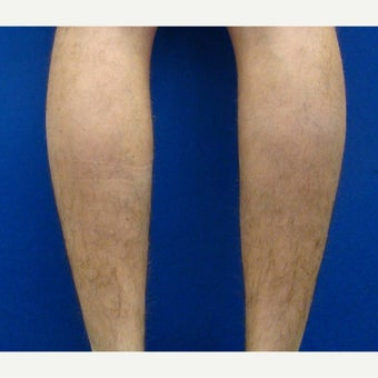 25-34 year old man treated with Calf Implant 1880343