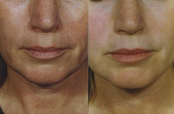Laser Resurfacing of the face before 705008