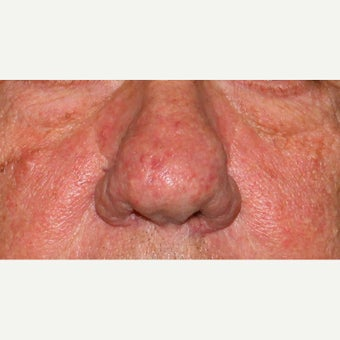 61 year old man treated with CO2 Laser for rhinophyma before 1783457